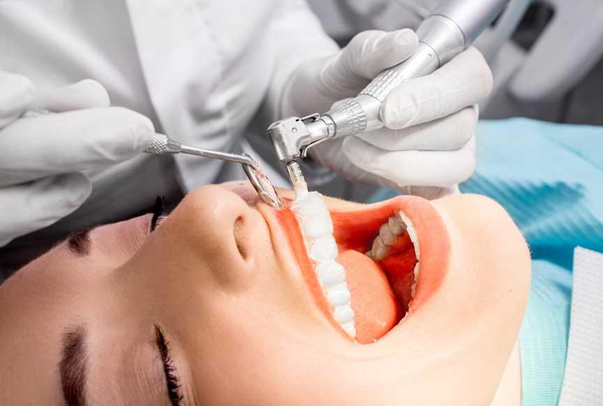 Profilaxia dental