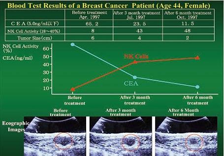 breast cancer_edited.jpg