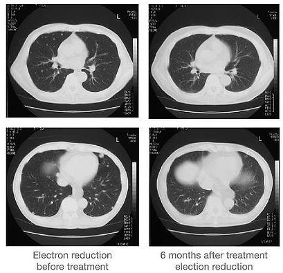 lung metastasis_edited.jpg