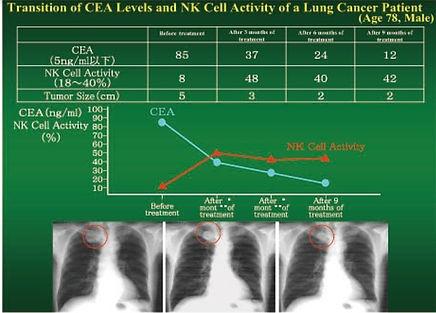lung cancer_edited.jpg