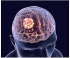 A New Method to Diagnose Brain Tumors.jp