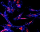 Normal DNA Repair Process Can Lead to Mu