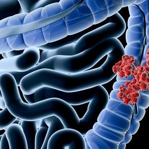 Nuevas recomendaciones para el tamizaje del cáncer colorectal