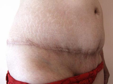 Cicatrice après abdominoplastie