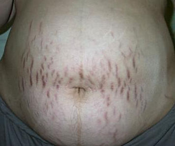 vergetures pendant la grossesse