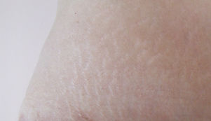 petites cicatrices post grosssse