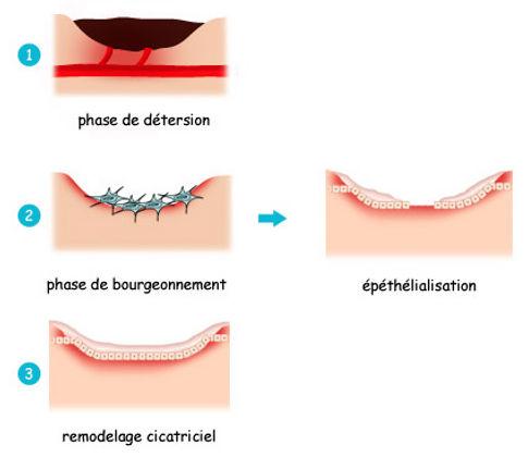 phases d'évolution dune plaie