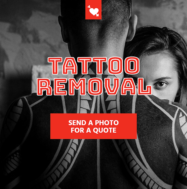 Tattoo removal promo.PNG