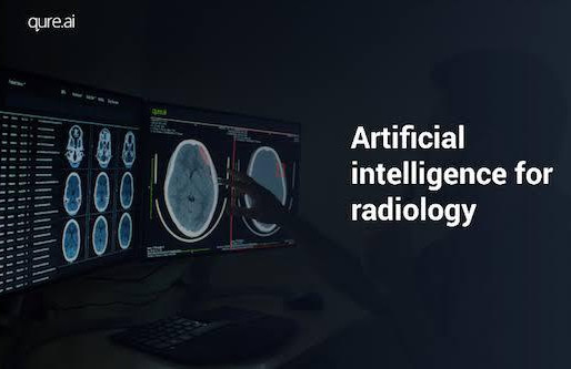 Qure.ai raises $16 million for AI that spots abnormalities in chest and head scans