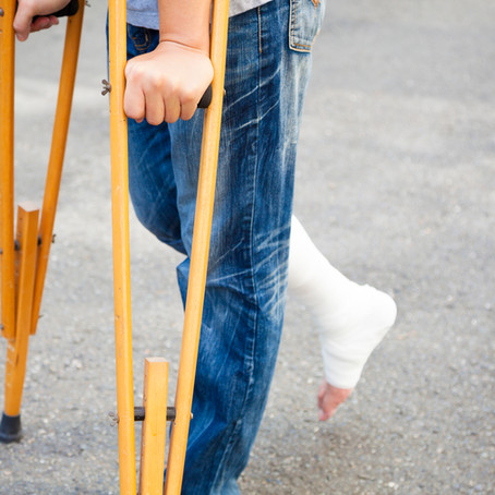 The Stresses of Foot Fractures