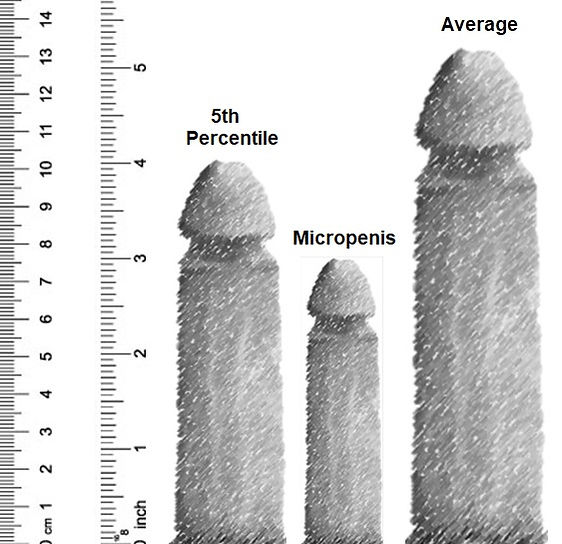 Penis Small.jpg