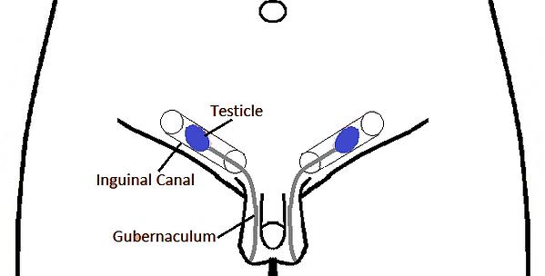 Inguinal Testicle B&W.png