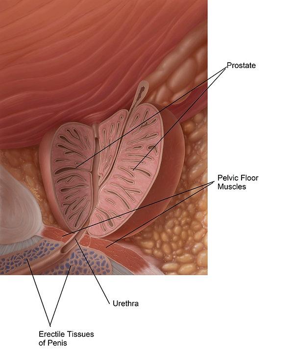 PF & Prostate.jpg