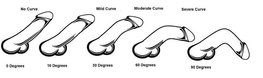 Ventral Curve - iStock 486934218.png