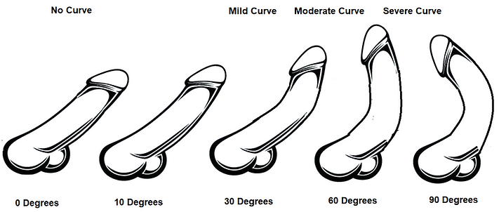 Dorsal Curve - iStock 486934218.png