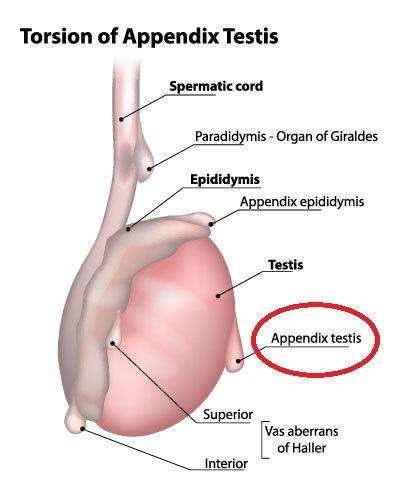 Appendix Testis.jpg