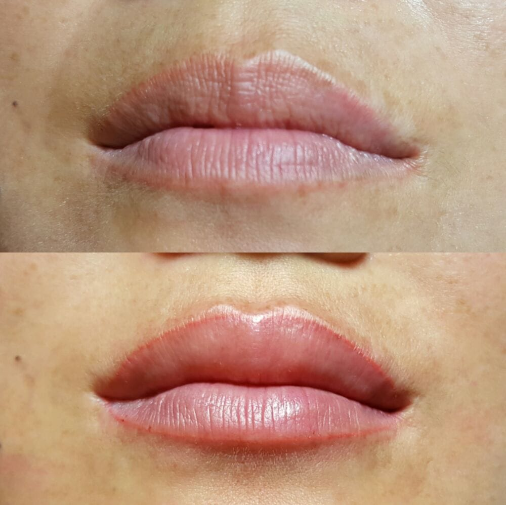 Full Lips 2