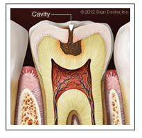 cavity.PNG