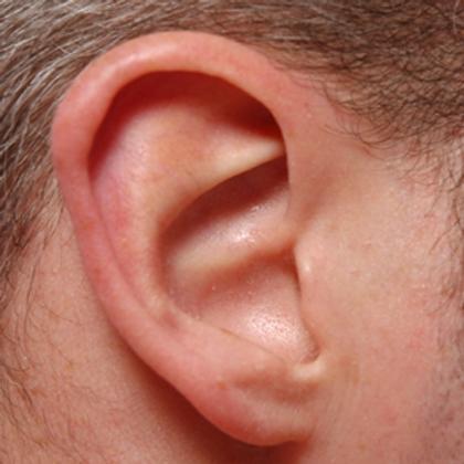 Epilation 1 zone : nez ou oreilles