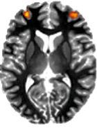 MRI Frontal.jpg
