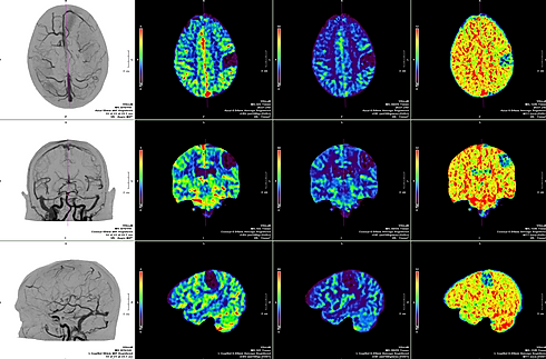 whole brain perfusion.png