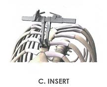 C. INSERT.png