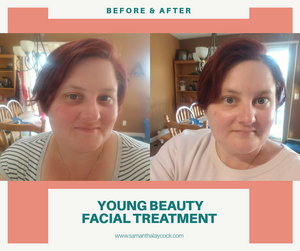 Before and after photos of my face.