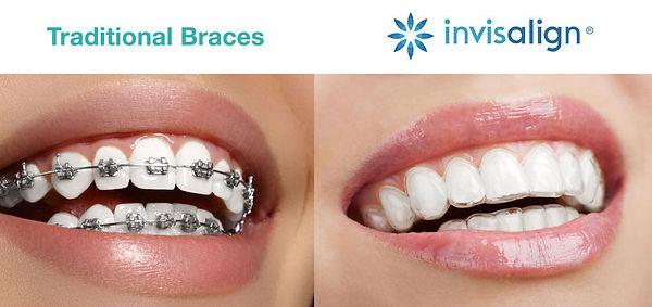 invisalign-vs-metal-braces.jpg