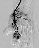 Abnormal blood vessels?