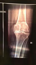 ginocchio con artrosi
