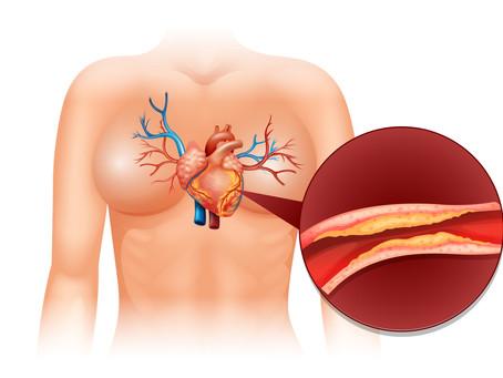 Webinares e campanhas de conscientização alertam sobre importância de controlar o colesterol