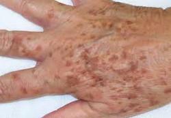 Manchas en piel