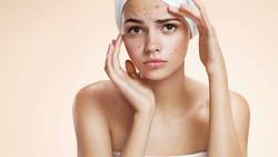 Tratamientos para acné