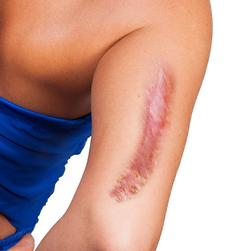 cicatrices-por-quemaduras2