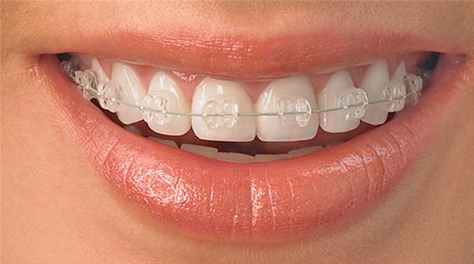 radiance-braces.png