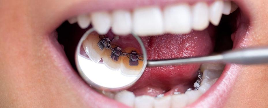 lingual-braces.jpg