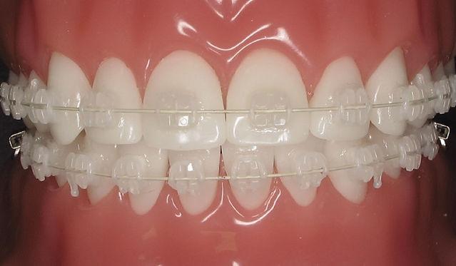 ceramic-braces.jpg