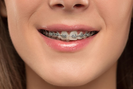 young-woman-with-teeth-braces-37W5NCX.jp