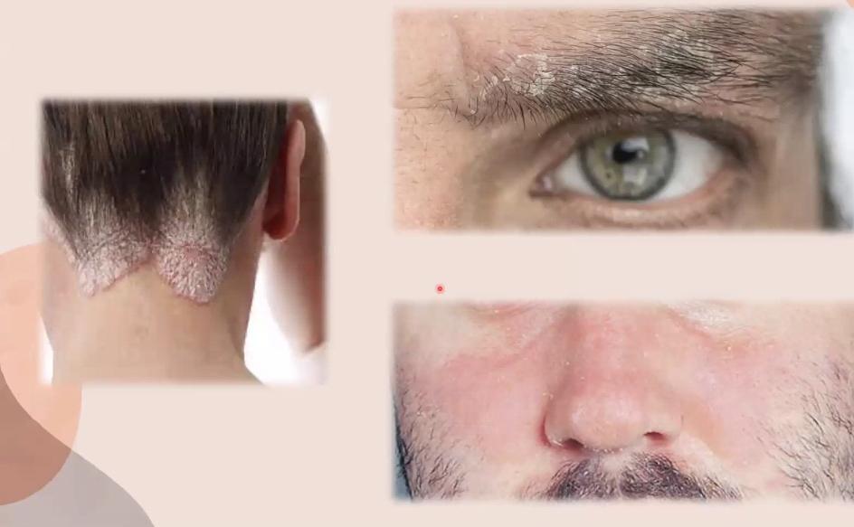Alteración cutanea por piel sensible