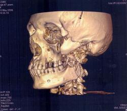 3D-реконструкция черепа