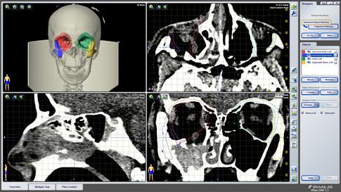 виртуальное планирование (сегментация черепа)