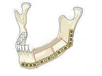 пластика челюсти, реконструкция нижней челюсти