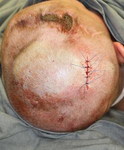 имплантация эспандера