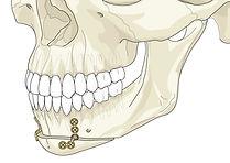 гениопластика, деформации лица, челютно-лицевая хирургия