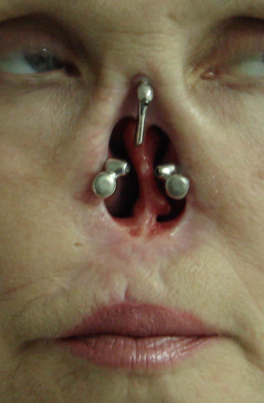 вид супраструктур на пациентке