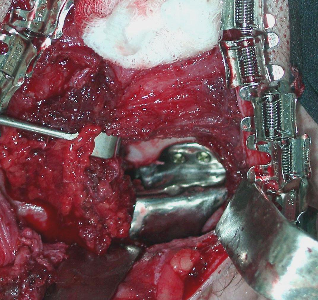 установка эндопротеза впадины