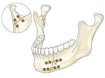 остеосинтез нижней челюсти