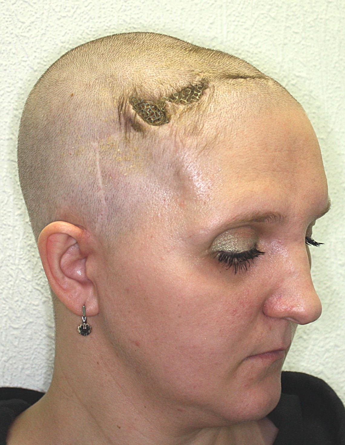 вид дефекта кожи над имплантатом