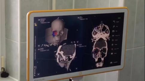 интраоперационная навигация положения скуловой кости