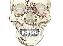 остеосинтез костей лица